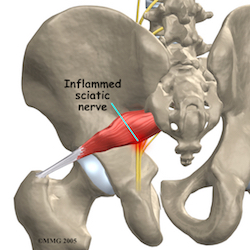 piriformis_anatomy02-2_resized NOv 29 2015